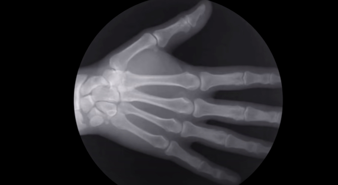 Arthritis Doctor Explains: CRACKING KNUCKLES GOOD or BAD
